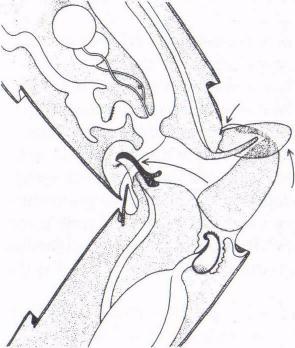 Figure 6 Stage 2