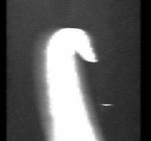 Figure 5 Stereogram 3